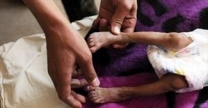 Yemen halkının yüzde 80'i yardıma muhtaç